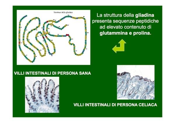 celiachia